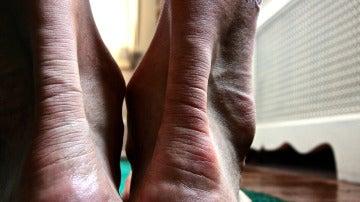 El tendón de Aquiles mide 15 centímetros de largo