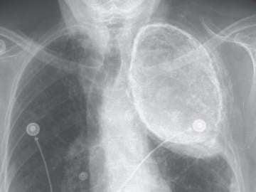 La radiografía desveló el aceite que albergaba uno de sus pulmones