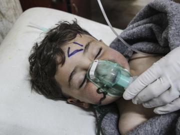 Un niño recibe tratamiento médico tras el ataque químico al norte de Siria