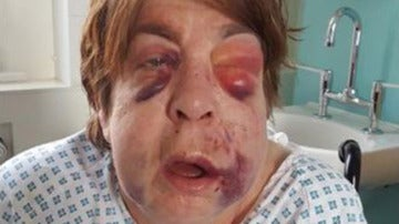 Bárbara Dransfield durante su hospitalización