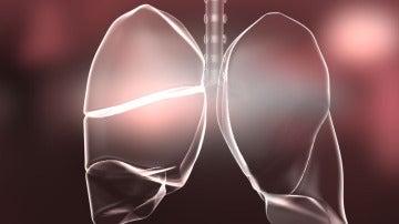 El ejercicio en hipoxia moderada es saludable para pacientes con EPOC