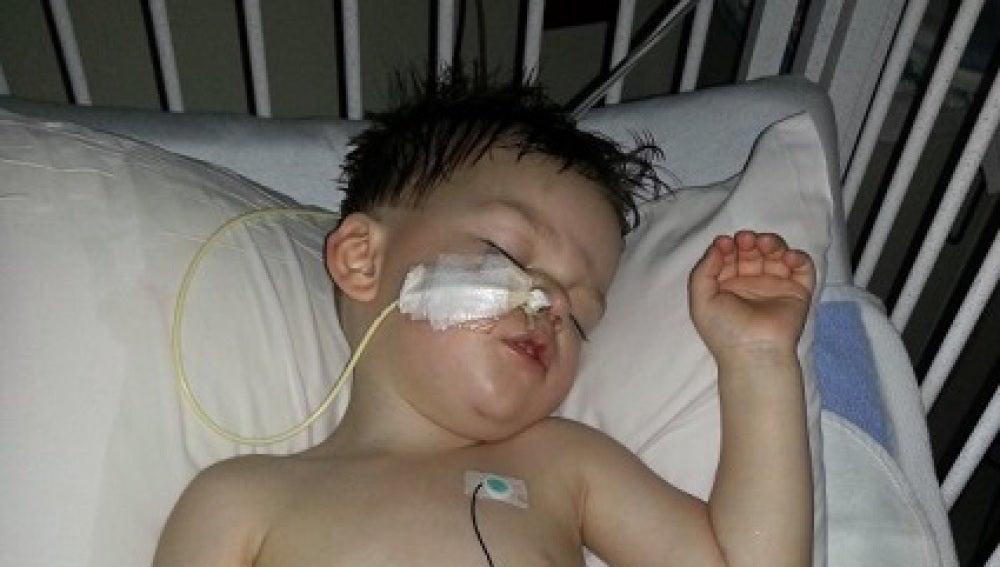Un hombre quema al hijo de su exnovia con agua hirviendo provocándole heridas muy graves