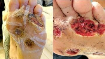 La piel de los pies pronto dividida en cinco verrugas