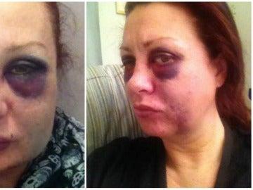 Una mujer sufre una brutal paliza por su exnovio y se hace fotos durante un mes para concienciar a otras mujeres