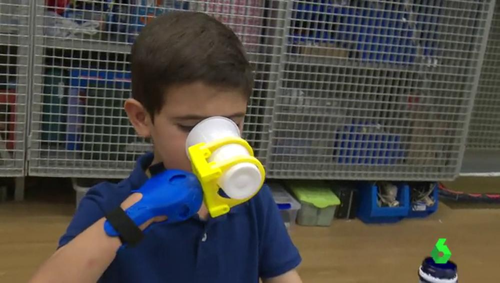 'SuperGiz', la nueva prótesis mecánica con tecnología 3D