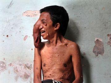 Un hombre de Indonesia con un tumor gigante en el ojo