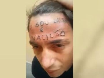 Joven tatuado en la frente