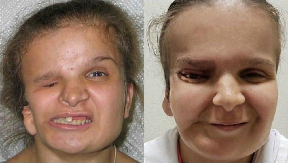 La joven Katya Badaeva antes y después de someterse a una de las operaciones