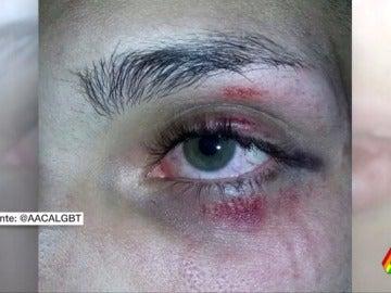 Al menos 12 agresiones homófobas contra el colectivo LGTBi en la semana de reivindicación del Orgullo