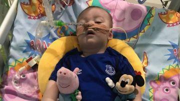 Alfie Evans, intubado en el hospital