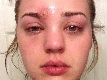 Se le infectó una espinilla con un pincel de maquillaje que casi le cuesta la vida