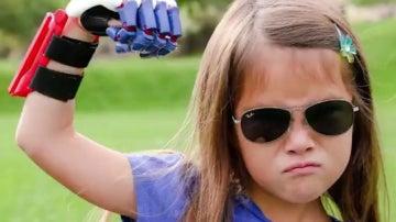 Niña de 7 años con prótesis impresa en 3D en su mano derecha