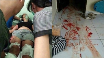 Un hombre le corta los pies a su mujer delante de sus hijos en Bali