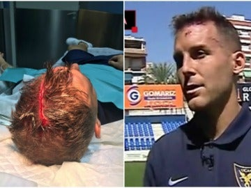 Góngora, el jugador del UCAM Murcia que sufrió una escalofriante herida en la cabeza