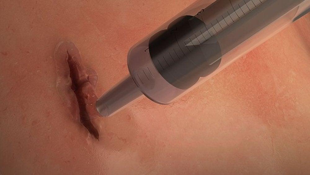 El pegamento es inocuo y puede ser absorbido sin problema por los tejidos