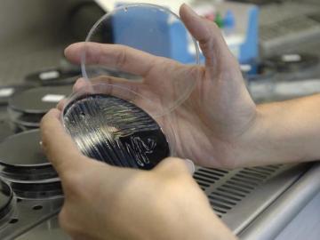 Una muestra es analizada en un laboratorio, en busca del foco de legionela