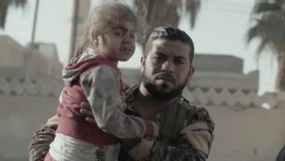 Un niña herida en Raqqa