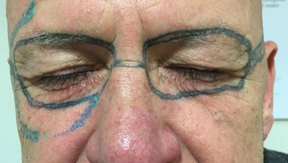 La Sexta Tv Un Hombre Se Quita Después De Dos Años El Tatuaje De