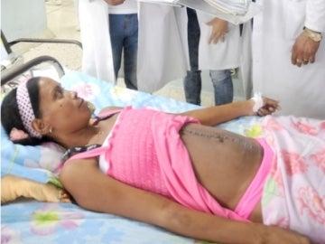 La mujer después de extraerle el fibroma de 10 kilos.