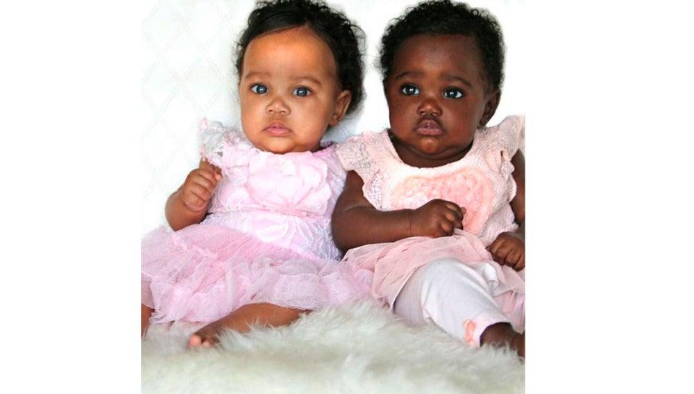 Foto de las gemelas con tonos de piel distintos