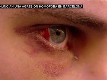 Joven víctima de una agresión homófoba