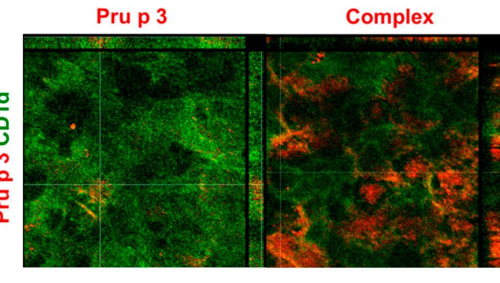 Imagen al microscopio de la investigación realizada.
