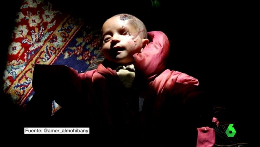 El símbolo de las víctimas de Al Assad: Karim, un bebé que perdió el ojo