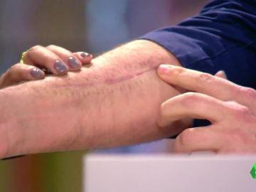 La impresionante cicatriz del mago Jorge Blass tras sufrir un atropello