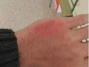 Inflamación por una agresión de un alumno
