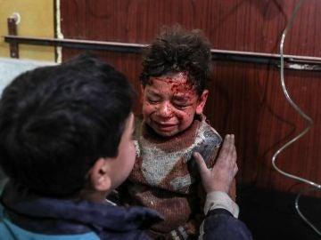 Dos niños heridos en los ataques de Guta Oriental