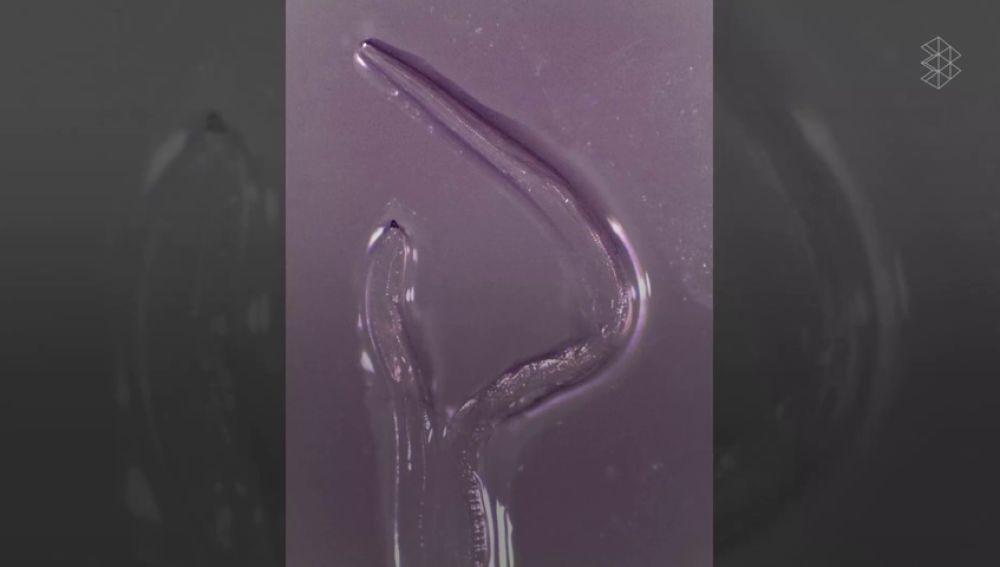 Retiran 14 gusanos del ojo de una mujer infectada por la 'mosca de la cara'