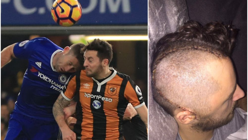 Ryan Mason tuvo que ser operado de la cabeza tras sufrir una fractura craneal