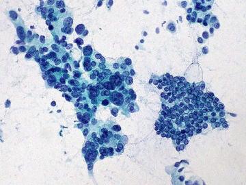 El estudio de un gen abre una nueva puerta a la prevencion del cancer de pancreas