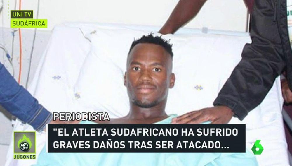 """Conmoción en Sudáfrica tras cortarle las piernas a un triatleta con una sierra: """"Un 80% de los huesos fueron seccionados"""""""
