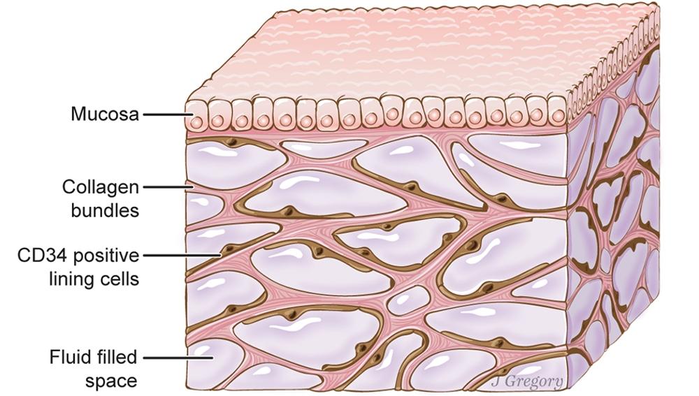 """Ilustración del """"intersticio"""", un posible nuevo órgano del cuerpo humano"""