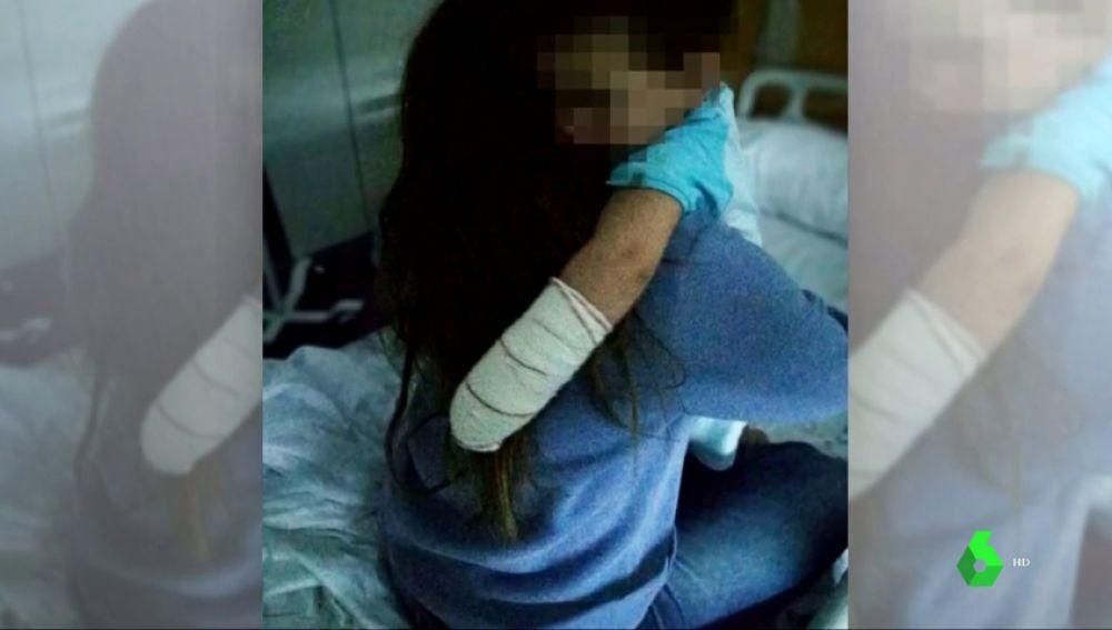 Un pitbull muerde a un niño de 19 meses que paseaba junto a su familia por Alpedrete, en Madrid