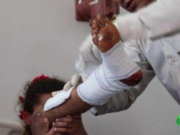 Un niña víctima de una mina antipersona