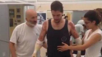 Los primeros pasos de Davide con sus prótesis nuevas
