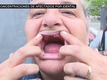 Una mujer con un tratamiento dental a medias