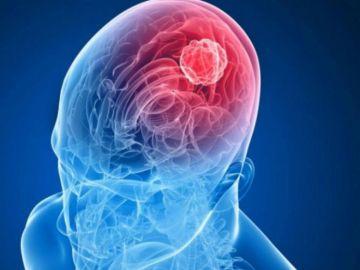 Recreación de metástasis cerebral