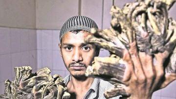 Imagen de Abul Bajandar, más conocido como el 'hombre árbol'