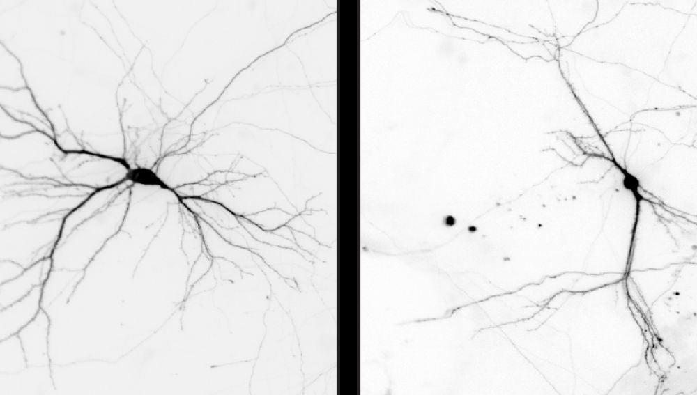 Identifican un nuevo regulador de la formacion de neuronas