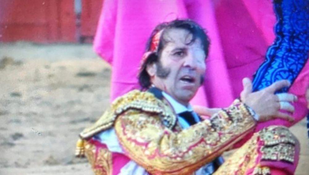 Juan José Padilla, con una parte del cuero cabelludo desprendida