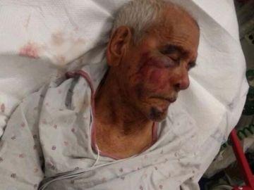 El anciano que fue agredido en Estados Unidos