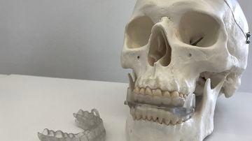 Impresion 3D personalizada para prevenir la apnea del sueno