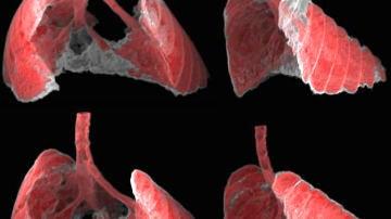 pulmones de un ratón con fibrosis