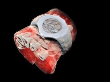 Radiografía a color de una muñeca en la que se aprecian los huesos, los tejidos blandos y hasta un reloj