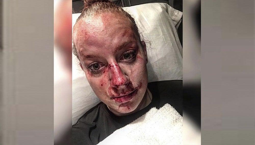 Policía herida tras una pelea con un joven