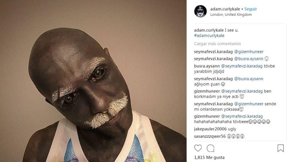 Adam Curlykale, el hombre que se extirpó los genitales por sus tatuajes