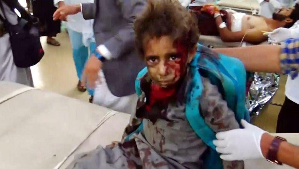 Imagen facilitada por el Movimiento Hutí de una víctima del ataque